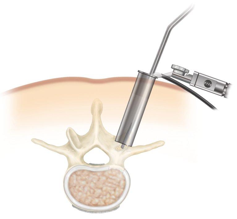 Αποτυχημένη χειρουργική επέμβαση σπονδυλικής στήλης