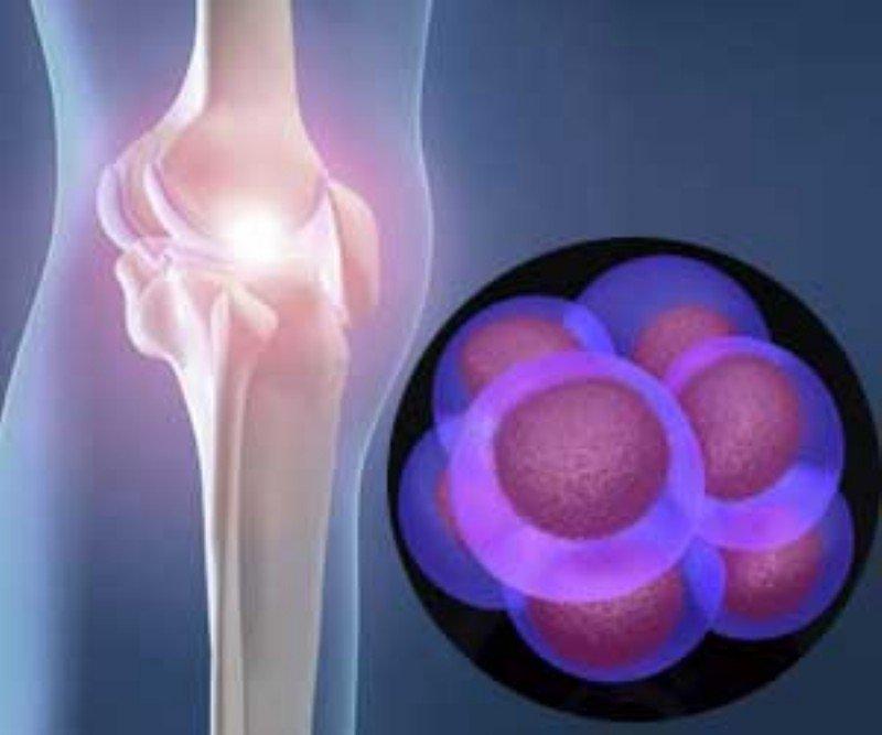 Έγχυση πλάσματος και βλαστοκύτταρα