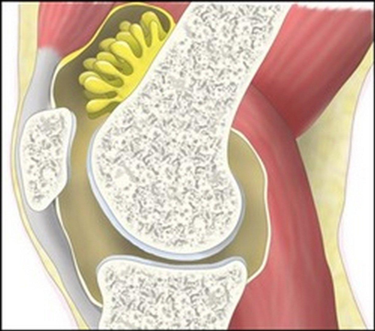 H θεραπεία της λαχνοοζώδους υμενίτιδας στο γόνατο
