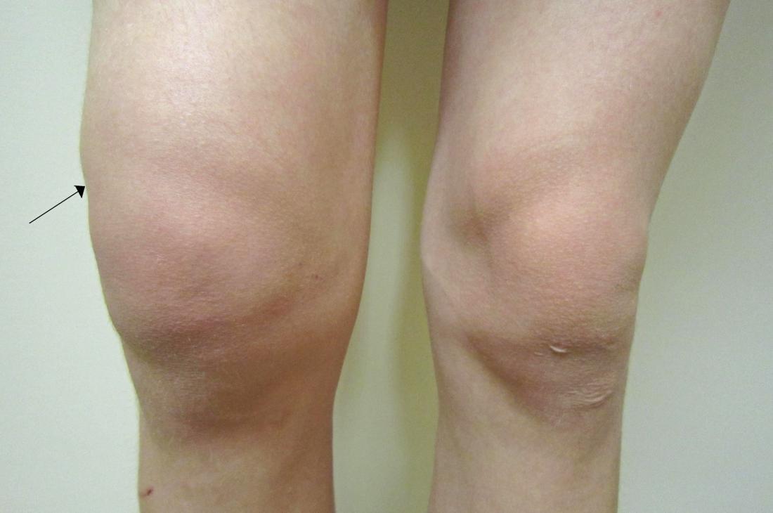 Κάταγμα γόνατος, χειρουργική επέμβαση και πρήξιμο
