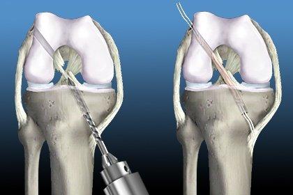 Αποκατάσταση μετά από χειρουργείο προσθίου χιαστού συνδέσμου